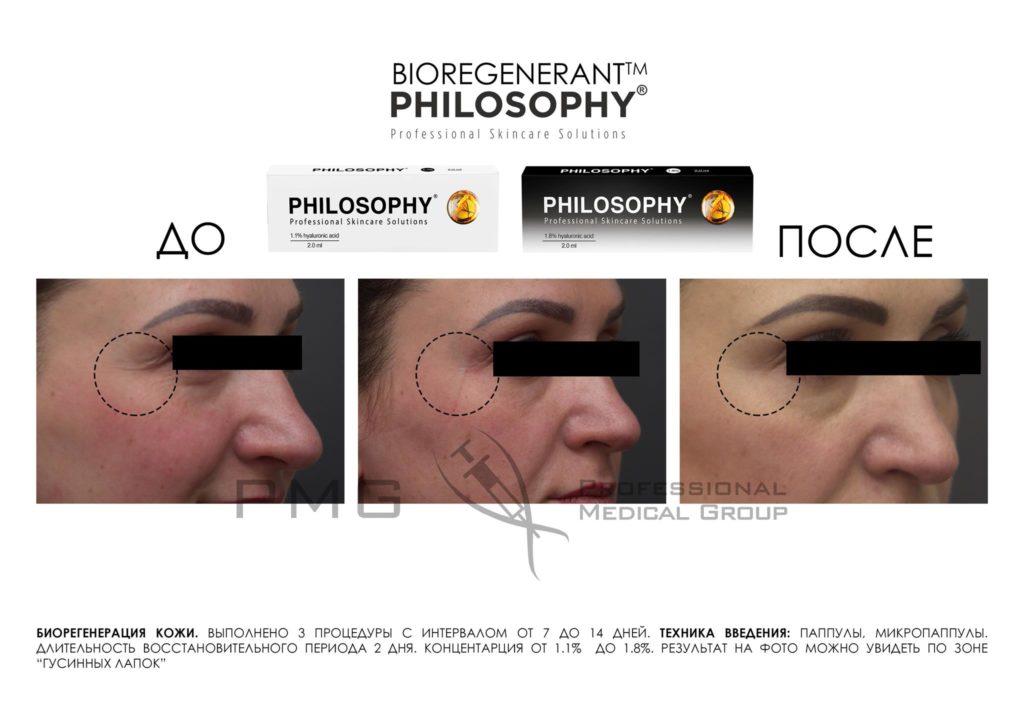 Биорегенерация кожи 1