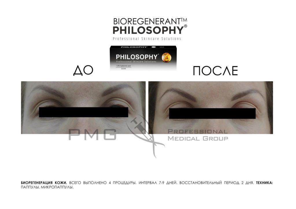 Биорегенерация кожи 3