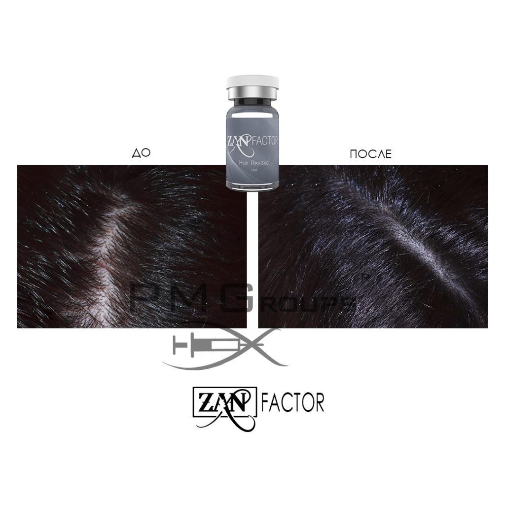 Hair Restors_пмг